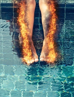 4-19-18-bigstock-Woman-with-burning-legs-consum-97984820